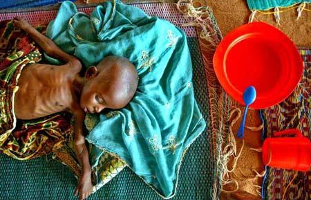 圖文:嚴重營養不良的尼日爾嬰兒
