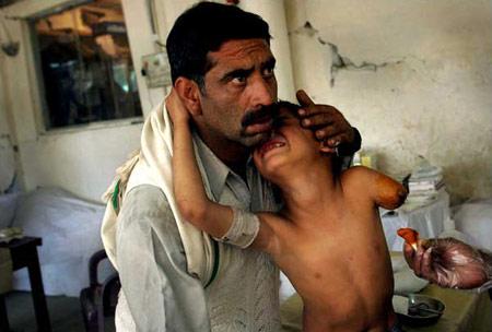 圖文:南亞地震後被截肢的孩子