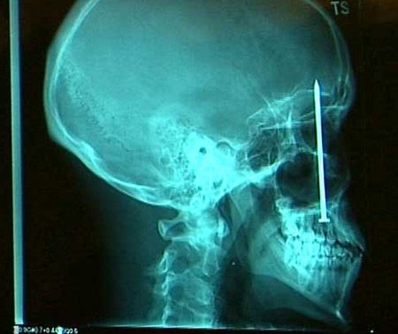 圖文:釘子釘入頭顱