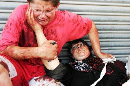 圖文:受傷的黎巴嫩男孩子撫摸著媽媽的臉