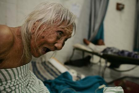 圖文:一名年老的印尼婦女大聲呼喚護士