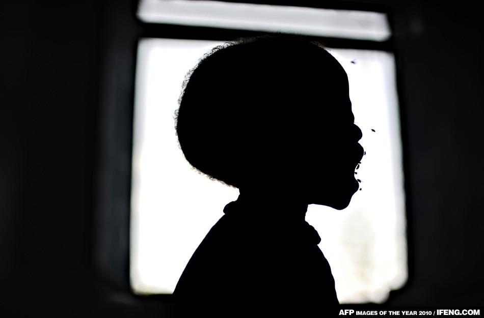 嚴重營養不良的2歲孩子Dhoal大哭不已,他周圍圍繞著很多蒼蠅