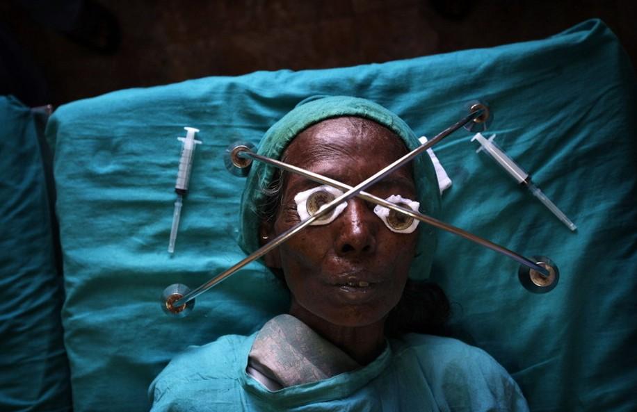 圖片:一名老人在接受局部麻醉後準備接受手術